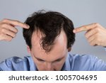 close up of a man's head with... | Shutterstock . vector #1005704695