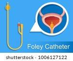 urine bag medical treatment... | Shutterstock .eps vector #1006127122