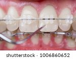 dentist checking up teeth with... | Shutterstock . vector #1006860652