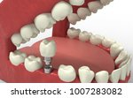tooth human implant. dental... | Shutterstock . vector #1007283082