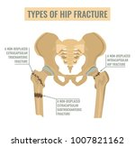 types of hip fracture. non... | Shutterstock .eps vector #1007821162