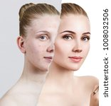 compare of old photo with acne... | Shutterstock . vector #1008032506