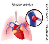 pulmonary embolism. blockage of ... | Shutterstock .eps vector #1009905145