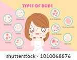 girl with types of acne on the... | Shutterstock . vector #1010068876