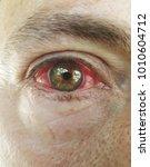 Red Eye Following Chemical Bur...