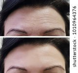 Small photo of forehead women wrinkles before and after