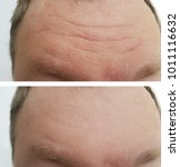 Small photo of forehead wrinkles men before and after rejuvenation