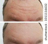 forehead wrinkles men before... | Shutterstock . vector #1011116632