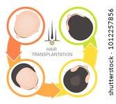 hair transplantation surgery 4...   Shutterstock .eps vector #1012257856