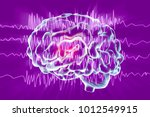 epilepsy awareness concept.... | Shutterstock . vector #1012549915