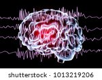epilepsy awareness concept.... | Shutterstock . vector #1013219206