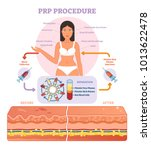 prp procedure vector... | Shutterstock .eps vector #1013622478