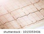 close up of an...   Shutterstock . vector #1015353436