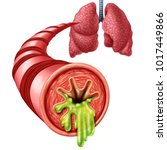bronchitis anatomy concept as... | Shutterstock . vector #1017449866