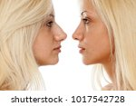 comparison of nose surgery ... | Shutterstock . vector #1017542728