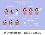 upper respiratory tract... | Shutterstock . vector #1018742602
