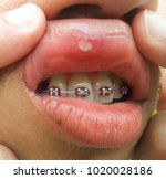 mouth ulcer is an ulcer that... | Shutterstock . vector #1020028186