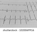 electrocardiogram record for...   Shutterstock . vector #1020069916