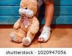 a girl with a broken leg shares ... | Shutterstock . vector #1020947056