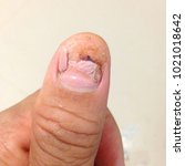 Small photo of finger accidentally slammed in a door, thumbnails removal.