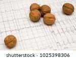 electrocardiogram graph  ecg  ...   Shutterstock . vector #1025398306