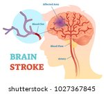 brain stroke anatomical vector... | Shutterstock .eps vector #1027367845