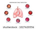 respiratory tract infection | Shutterstock .eps vector #1027620556