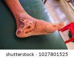 Wound Healing.  Infection Woun...