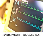 digital vital sign monitoring... | Shutterstock . vector #1029687466
