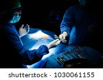 doctor operating in operation... | Shutterstock . vector #1030061155