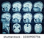 closeup of a ct scan with brain.... | Shutterstock . vector #1030900756