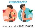 chiropractic conceptual vector... | Shutterstock .eps vector #1031138452