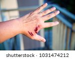 focus dog bite wound and blood... | Shutterstock . vector #1031474212