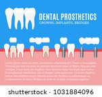 dental prosthetics illustration.... | Shutterstock .eps vector #1031884096