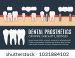dental prosthetics illustration.... | Shutterstock .eps vector #1031884102