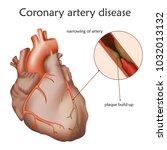 Coronary artery disease. Blocked artery, damaged heart muscle. Anatomy illustration. Colorful image, white background.