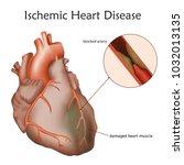 ischemic heart disease. blocked ... | Shutterstock .eps vector #1032013135