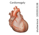 cardiomegaly. enlarged heart... | Shutterstock .eps vector #1032013138