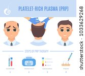 platelet rich plasma injection... | Shutterstock .eps vector #1033629268