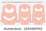 vector illustration. weight... | Shutterstock .eps vector #1034369542