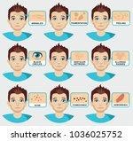 man skin problems vector... | Shutterstock .eps vector #1036025752