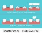 dental implants versus fixed... | Shutterstock .eps vector #1038968842