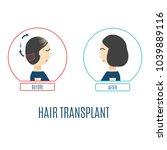 hair transplantation... | Shutterstock .eps vector #1039889116