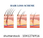 stages of hair loss on human... | Shutterstock .eps vector #1041276916