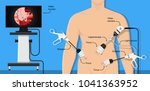 appendectomy medical surgery... | Shutterstock .eps vector #1041363952