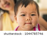the baby has rashes on her face ... | Shutterstock . vector #1044785746