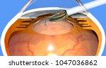 intraocular lens implanting... | Shutterstock . vector #1047036862