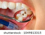 dental caries. filling with...   Shutterstock . vector #1049813315