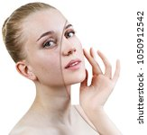 young woman with acne before... | Shutterstock . vector #1050912542