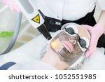 close up carbon face peeling... | Shutterstock . vector #1052551985